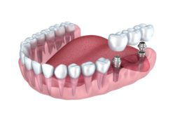 dental implant secured bridge manassas va dental implant services