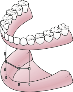 implant secured denture diagram manasass va dentist office