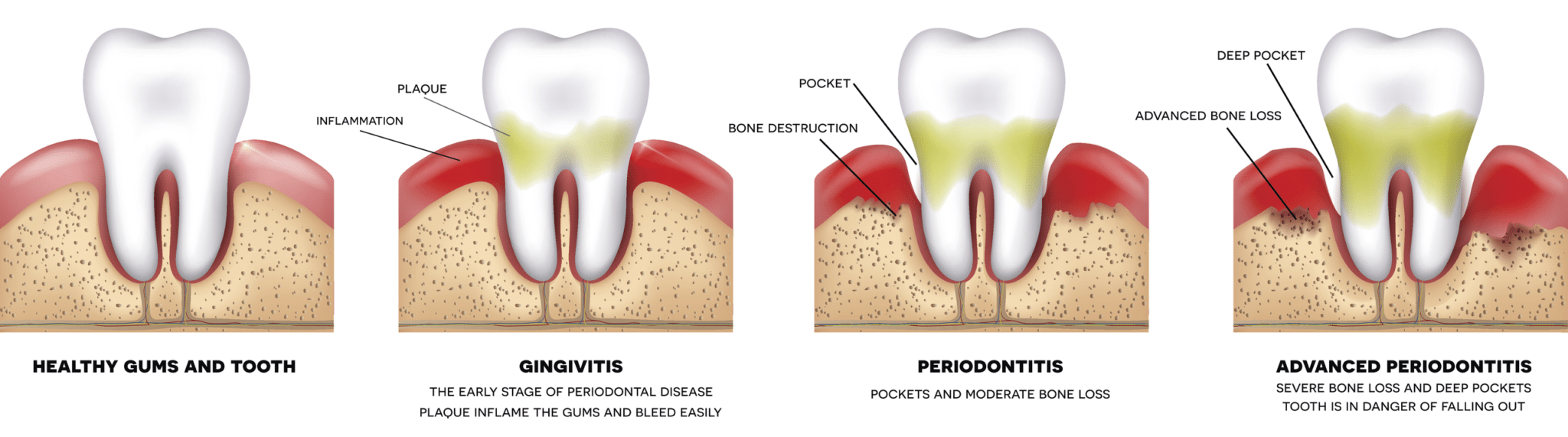 gum-disease-progression manassas smiles va