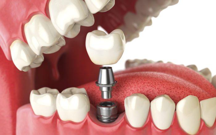 Tooth implant. Dental concept. Human teeth or dentures. Manassas Smiles VA