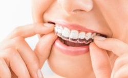 Treating crooked teeth manassas va