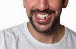 Replacing Missing Teeth Manassas VA